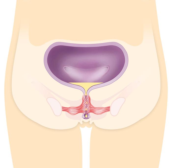 Beckenbodenschwäche | Ursachen, Konsequenzen & Therapie